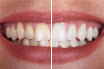 Get A Perfect Shiny White Smile With Teeth Whitening Treatment